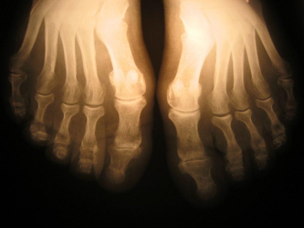 Jak wynaleziono rentgen?